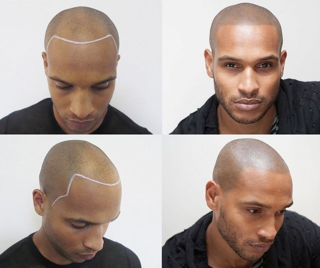 scalp micropigmentation transformation clearwater fl