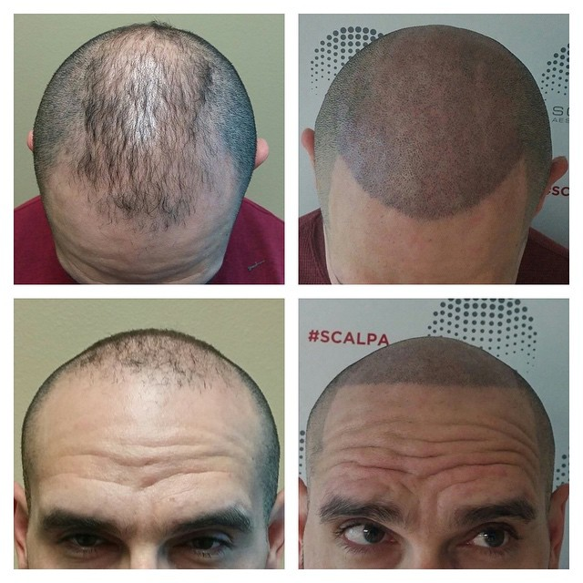 scalp micropigmentation specialist clearwater fl