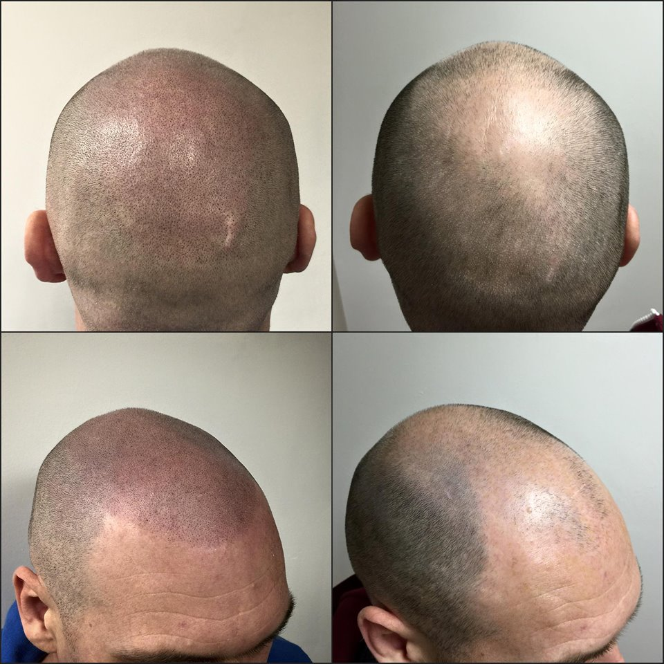 scalp micropigmentation in tampa bay