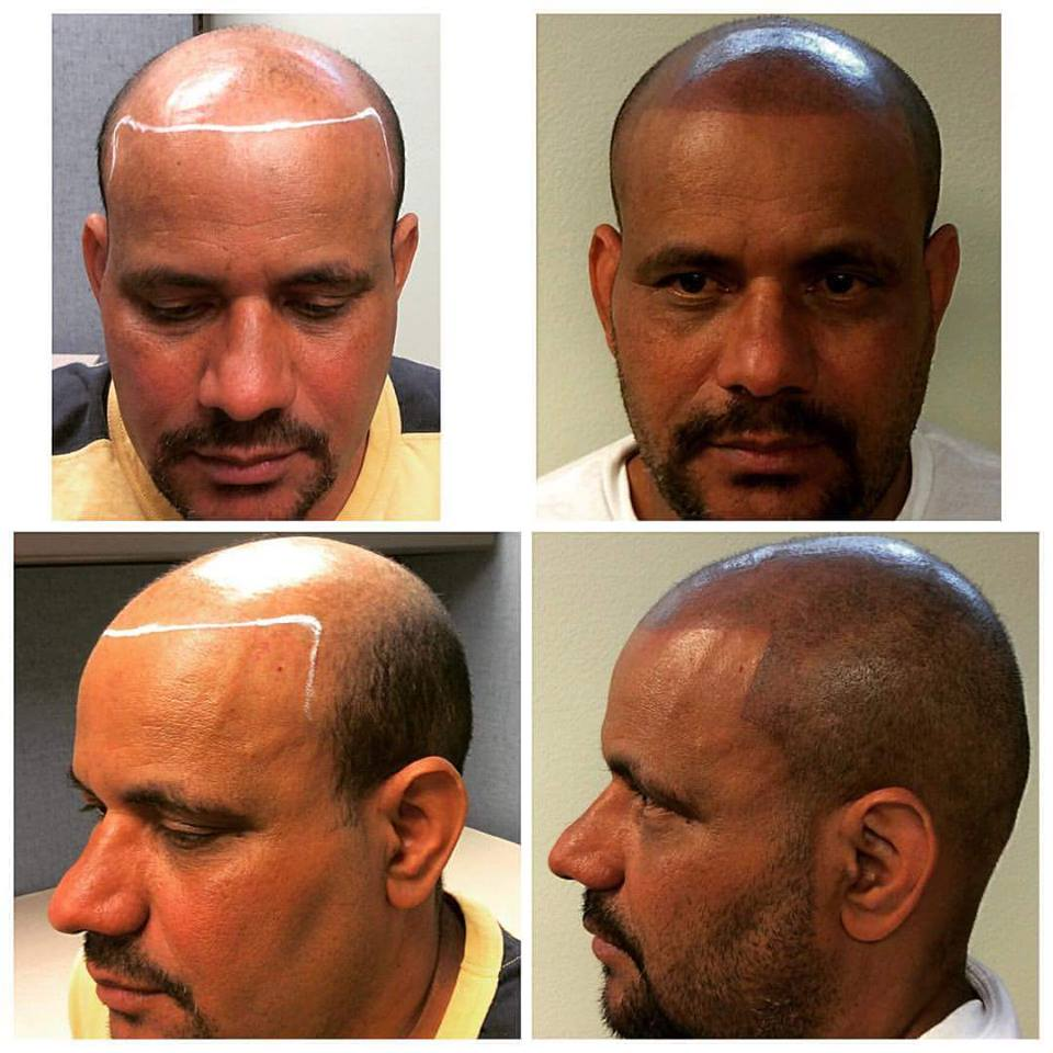 scalp micropigmentation treatments