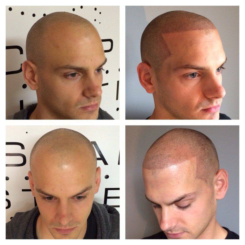 Scalp Micropigmentation in clearwater fl tampa fl