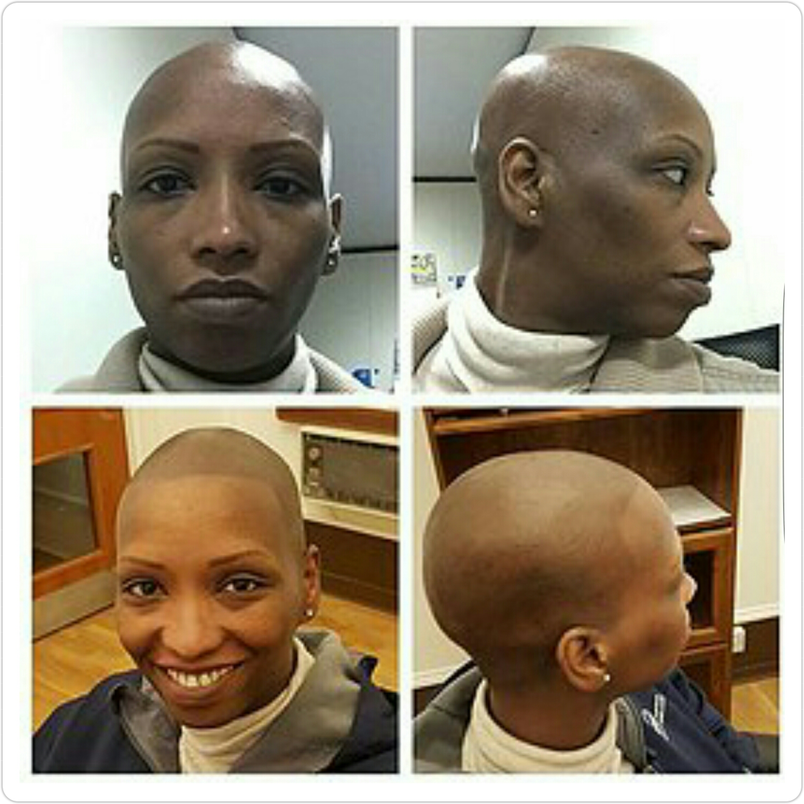 scalp micropigmentation in tampa fl