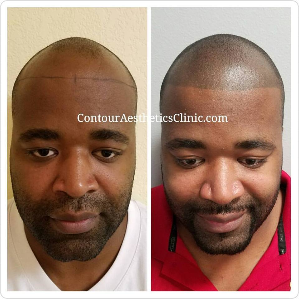 scalp micropigmentation clearwater florida