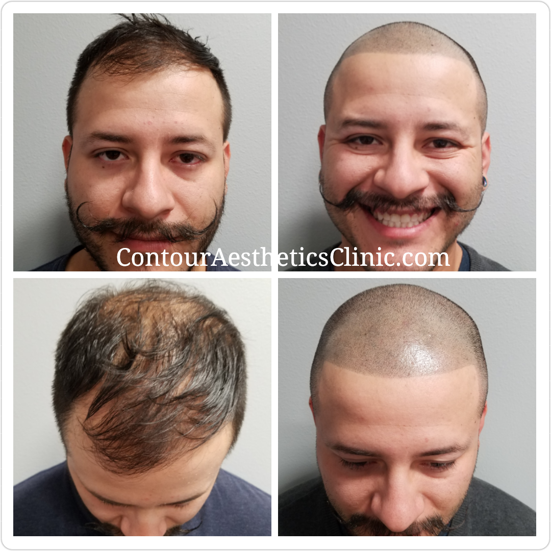 scalp micropigmentation tampa florida