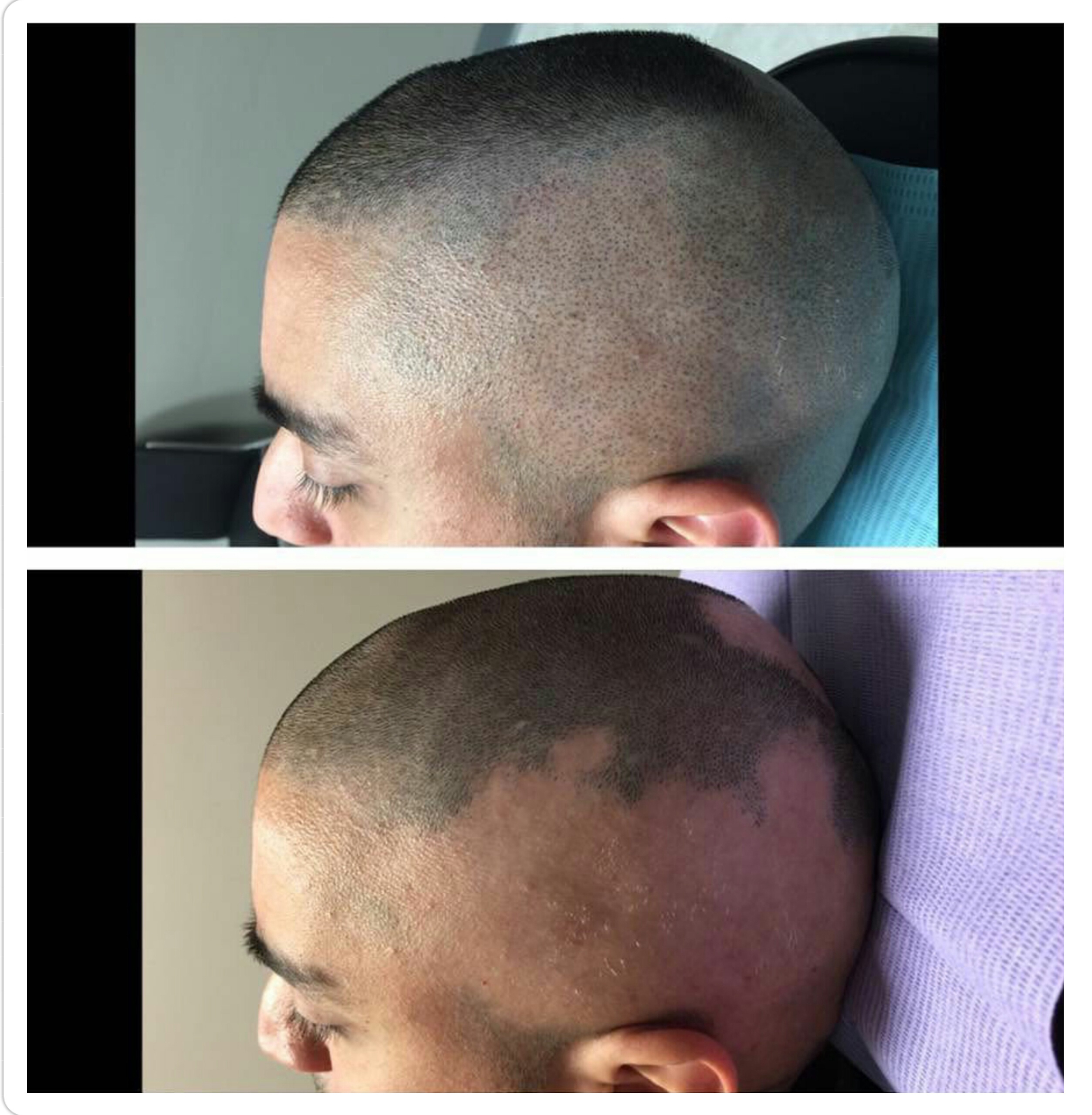 micropigmentation of the scalp tampa