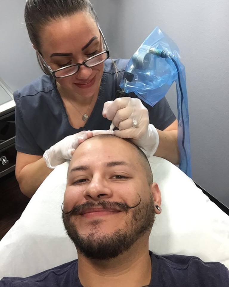 scalp micropigmentation treatment clearwater fl