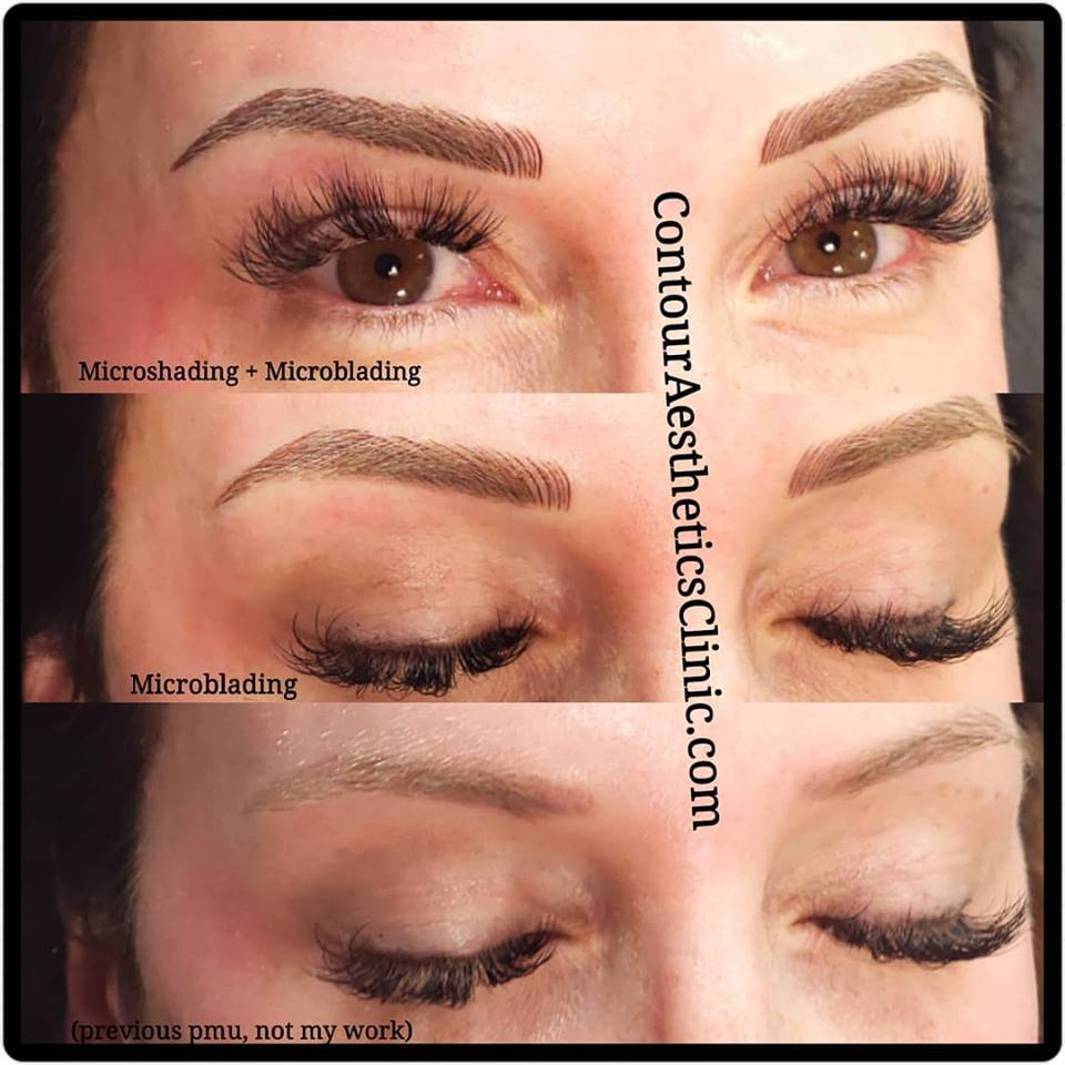 Eyebrow Microblading | Contour Aesthetics Clinic
