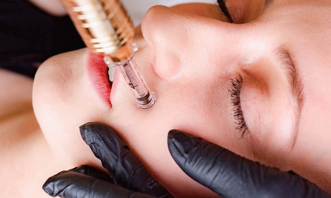 hyaluronic filler clearwater fl and tampa fl